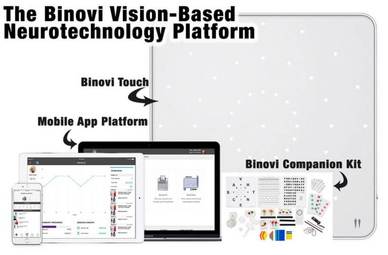 Binovi Vision-Based-2