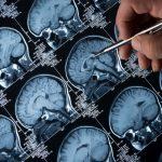 Biogen's Alzheimer's Drug Gets FDA Nod