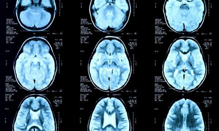 Marinus Anti-Epileptic Drug Enters Third Phase of Clinical Trials